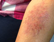 moulage_easy_FX_bruise